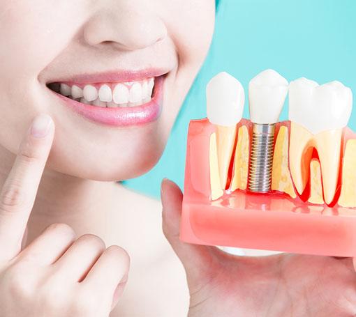 Dental implant in Vikaspuri